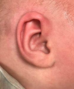 after newborn ear correction
