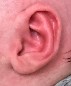 after newborn ear correction right