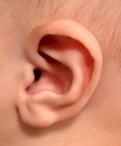 7-week-old boy newborn non-surgical ear correction after
