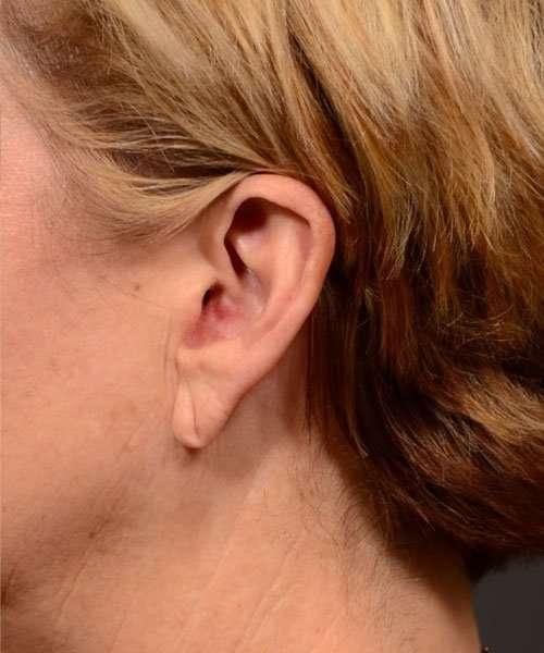before earlobe reduction