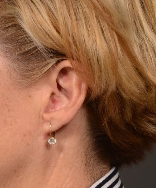 after earlobe reduction