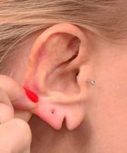 before earlobe repair