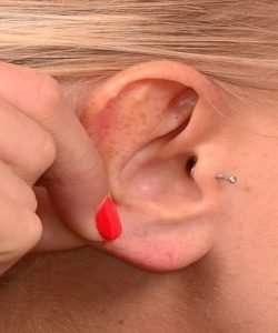 after earlobe repair