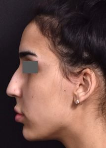 before female non-surgical rhinoplasty side