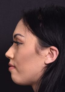 before female liquid rhinoplasty side