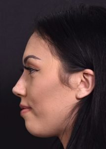 after female liquid rhinoplasty side