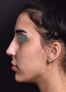 after female non-surgical rhinoplasty side