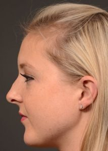 female rhinoplasty before side