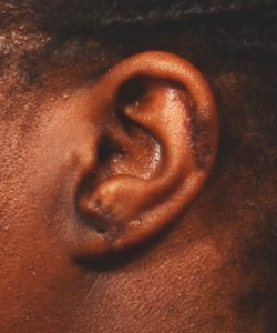 after keloid removal