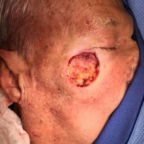 before male skin cancer repair