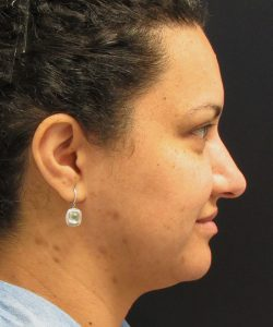 before lower face and neck contouring using liposuction facetite and morpheus8 side