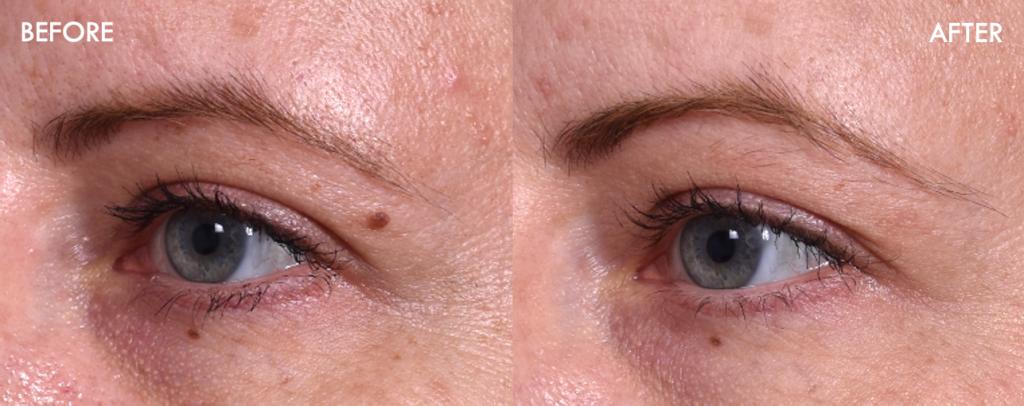 birthmark mole nevus removal