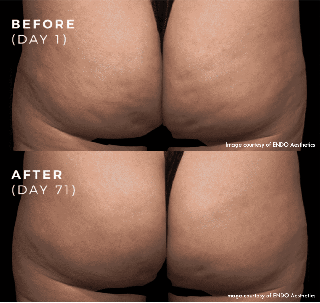 Qwo is the injectable, permanent reduction of cellulite without surgery