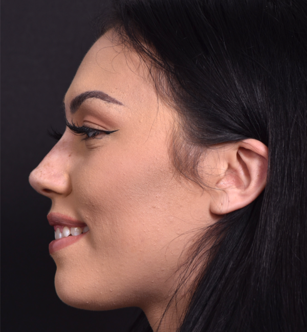 after non-surgical rhinoplasty