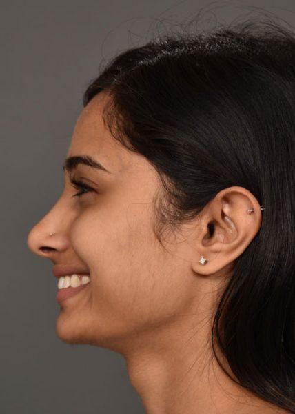 after female septorhinoplasty side smile